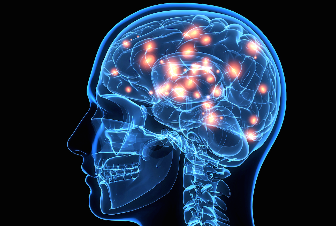 Natural Supplements to Improve Memory Brain Function ...